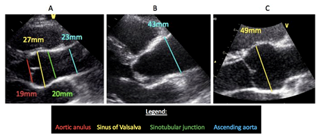 This figure shows echocardiographic images of the aortic root and ascending aorta. Image A shows a normal aorta with measurements. Image B shows dilatation of the ascending part of the aorta, as often seen in Turner syndrome, BAV and nonsyndromic heritable thoracic aortic aneurysm disease (HTAD). Image C shows dilatation of the sinuses of Valsalva, as often seen in Marfan syndrome and Loeys Dietz syndrome (and can be present in nonsyndromic HTAD and BAV).