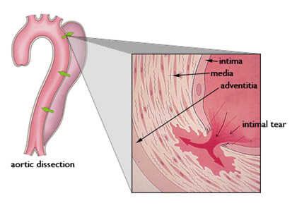 This image shows the wall of the aorta which consists of 3 layers: the intima, media, and adventitia. The intima is the innermost layer; the media, the middle layer; the adventitia, the outer later. This image also shows an aortic dissection which occurs when blood enters the wall of the aorta through a tear or split in the intima.