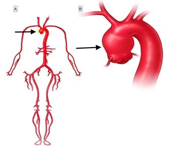 This figure shows two different images. Image A shows a circulatory system demonstrating aneurysm of the ascending aorta.  Image B shows the aorta and its branches with ascending aortic aneurysm.