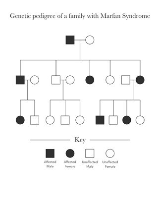 This image shows an example of a genetic pedigree of a family with Marfan. The tree depicts variations of affected males and females within the tree.