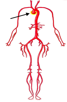 This image shows the circulatory system demonstrating aneurysm of the aortic root.
