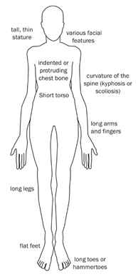 This images shows the characteristics of a person with Marfan Syndrome. From the top of the body to the bottom the characteristics are as follows: tall, thin stature; various facial features; indented or protruding chest bone; short torso; curvature of the spine (kyphosis or scoliosis): long arms and fingers; long legs; flat feet; and long toes or hammertoes.