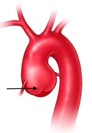 This image shows a close up of an aortic root aneurysm .