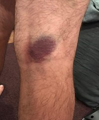 This photo shows a knee with a bruise on the knee cap.